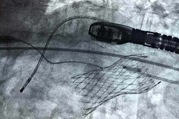 Photo of TAVR Xray mid-surgery