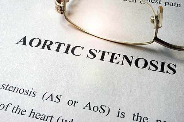 Aortic stenosis written on page