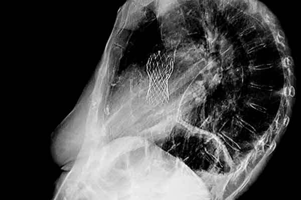 Xray of chest (lateral) showing aortic valve replacement